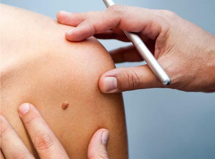 Удаление новообразований кожи на аппарате «СУРГИТРОН»